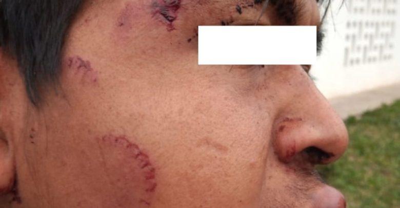 Violencia policial hacia una familia Qom